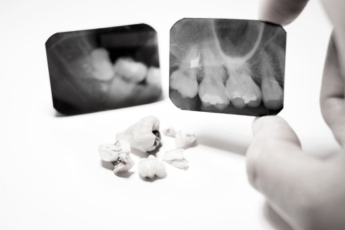 Impacted Tooth Treatment in San Diego