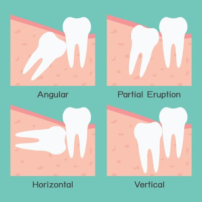 Impacted Canine Teeth