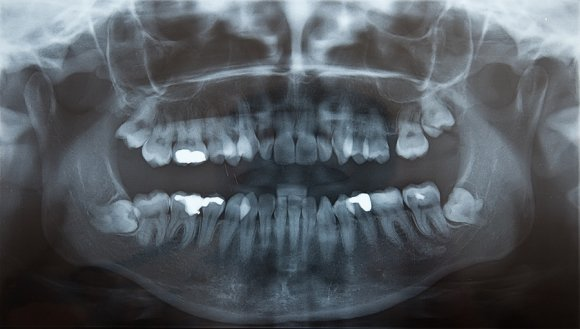 A Look at Oral Surgery to Remove an Impacted Tooth San Diego