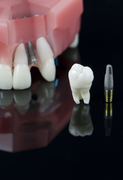 Implant supported dentures in San Diego, CA